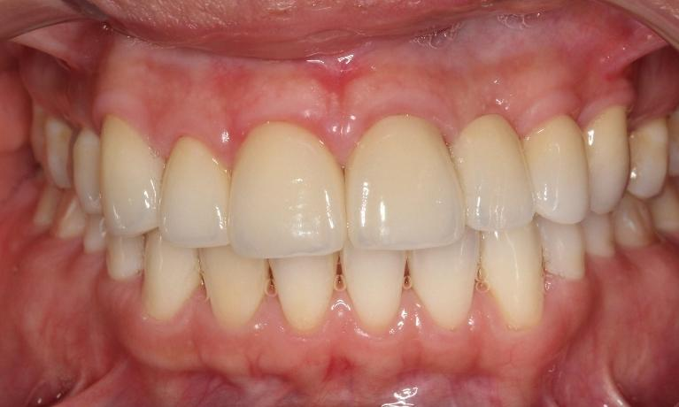 Porcelain-crown-makeover-canine-to-canine-to-replace-bridge-and-cosmetically-unpleasing-restoration-After-Image