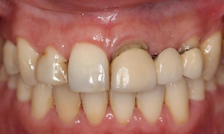 Porcelain-crown-makeover-canine-to-canine-to-replace-bridge-and-cosmetically-unpleasing-restoration-Before-Image
